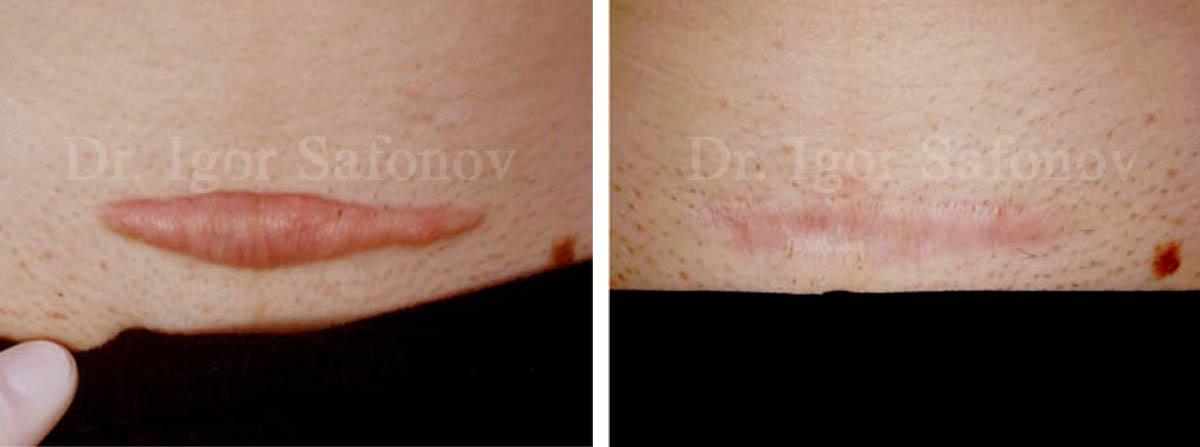 Hypertrophic C-Section scar before and after treatment