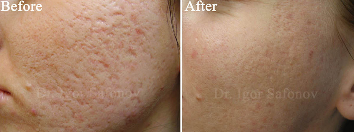 Improving of atrophic acne scars