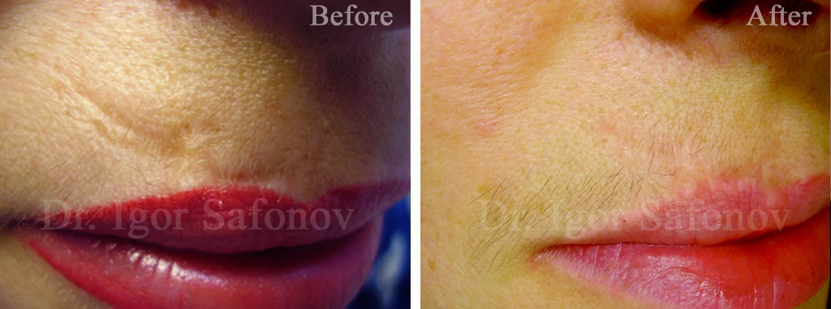 Correction of the old scar after injury on the upper lip