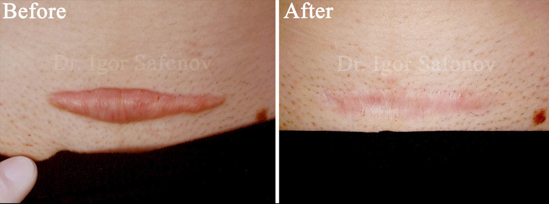 Kortison behandling av hypertrofiskaärr efter kejsarsnitt(foton före och efter)