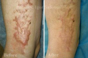 Microneedling post burn scars treatment