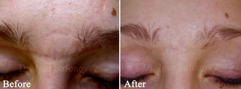 slipning av atrofiska ärr i ansiktet med djup kirurgisk dermabrasion (foton före och efter )