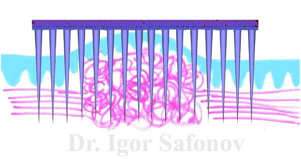 Microneedling for pathological scar