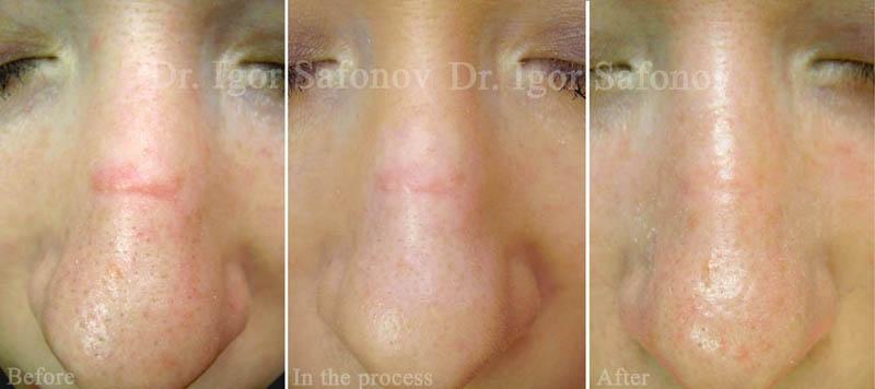 behandling mot ärr i ansiktet