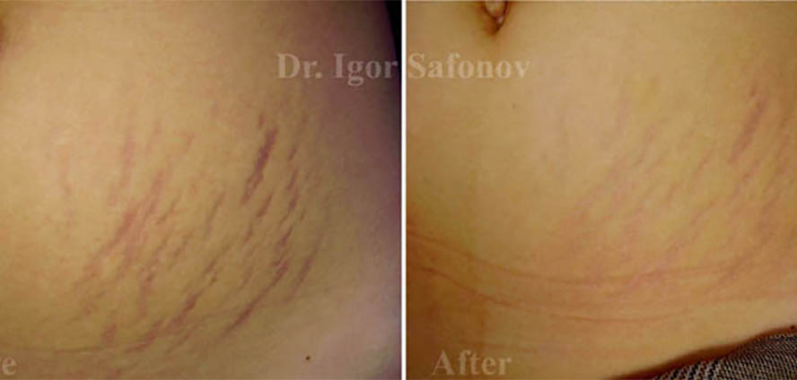 methods of stretch mark removal, surgical methods of removing stretch marks, surgical excision of stretch marks, abdominoplasty for stretch marks, mesotherapy stretch marks before after, microdermabrasion for stretch marks, stretch marks on the hips, chemical peels for stretch marks, laser for stretch marks, vascular lasers for red stretch marks before and after, stretch marks on the breast before after