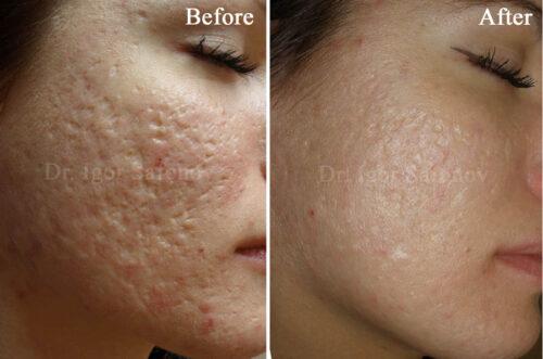 microneedling behandling mot acneärr gropar i ansiktet (före och efter)