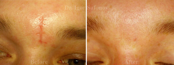 microdermabrasion of normotrophic scars