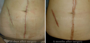 Transformation of normotrophic scars to hypertrophic scars
