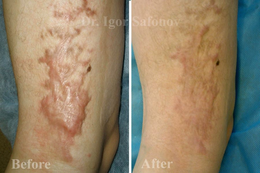 Image result for microneedling for burn scars